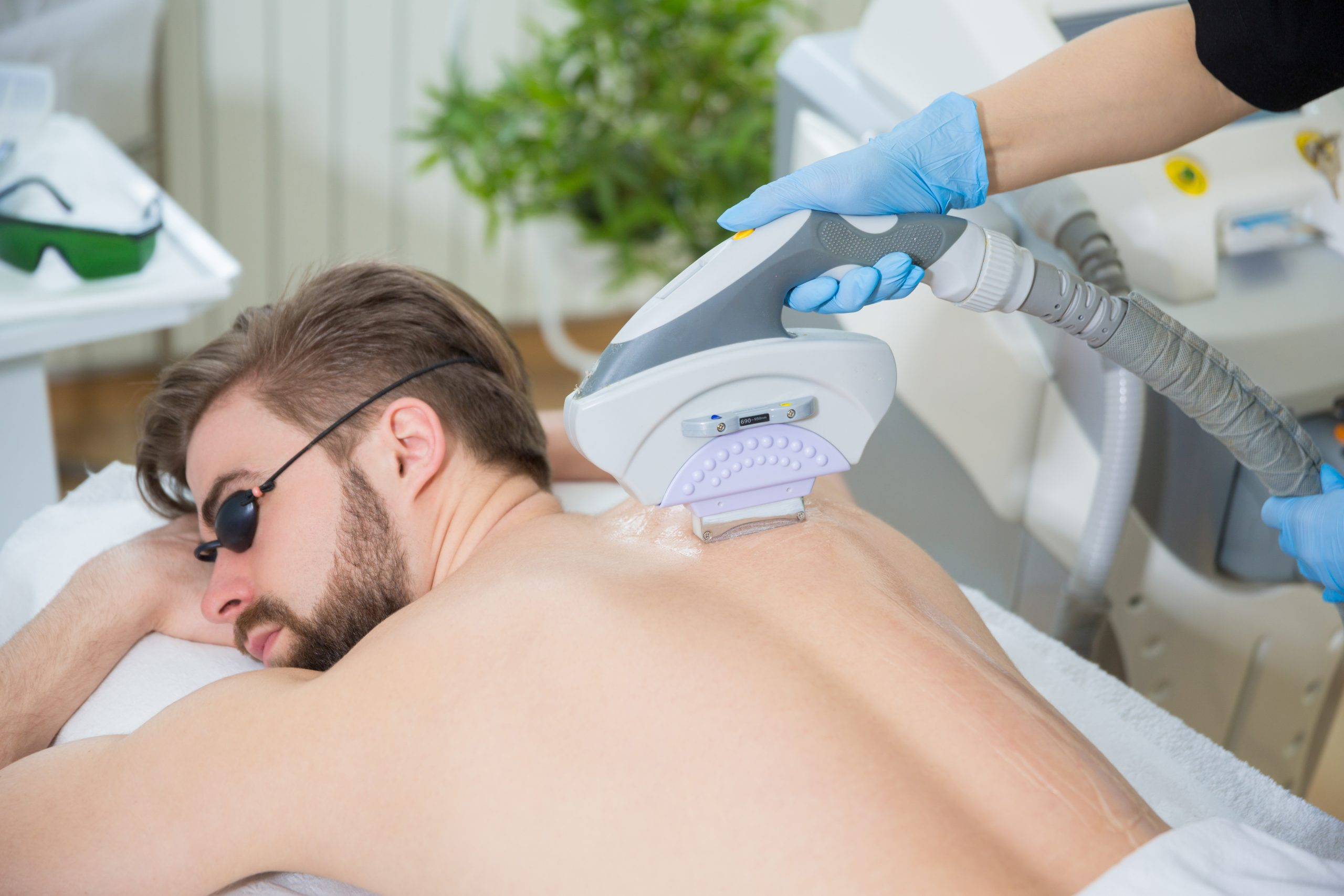 Laser hair removal, back hair removal, How to Manscape