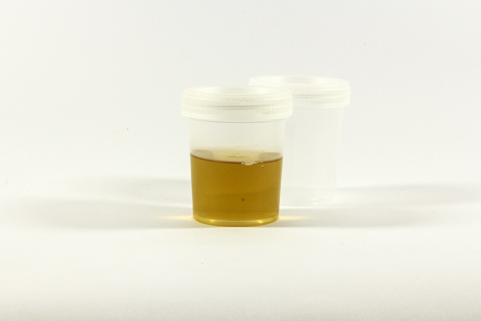 Urine Sample Container, Urine Color, Poop And Pee, Health