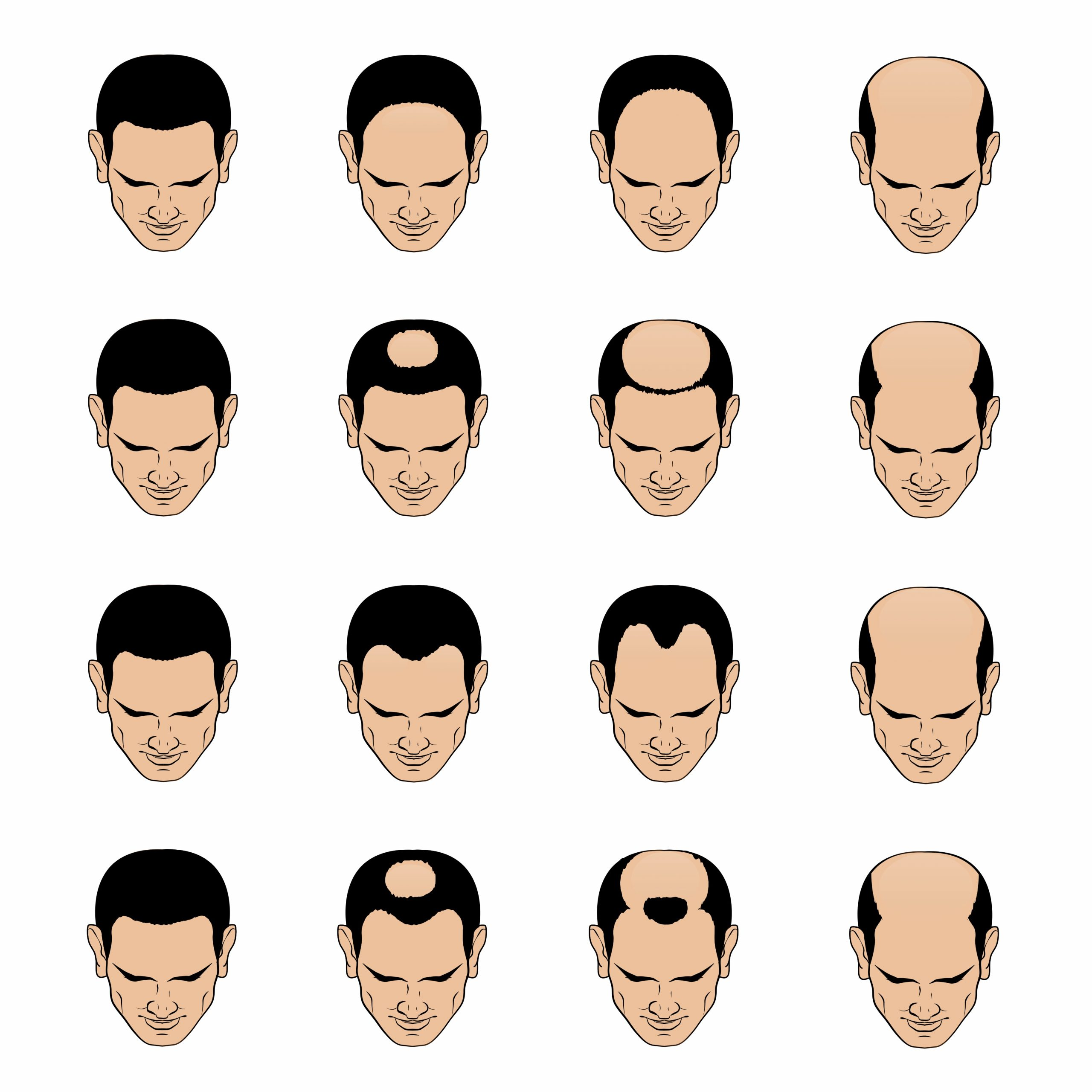 male pattern baldness, androgenetic alopecia, male hair, why do men go bald, how to make your hair thicker