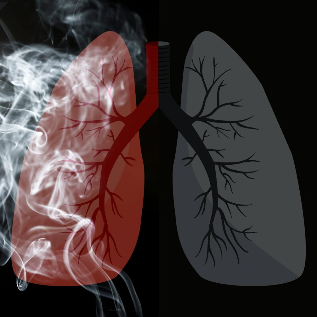 Lungs, Inflamed, Cigarette Smoke, Harmful Gases, Smoking